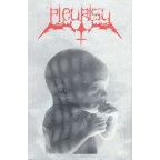 Pleurisy - Degenerated To A Human Life